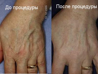 Вены на руках анатомия